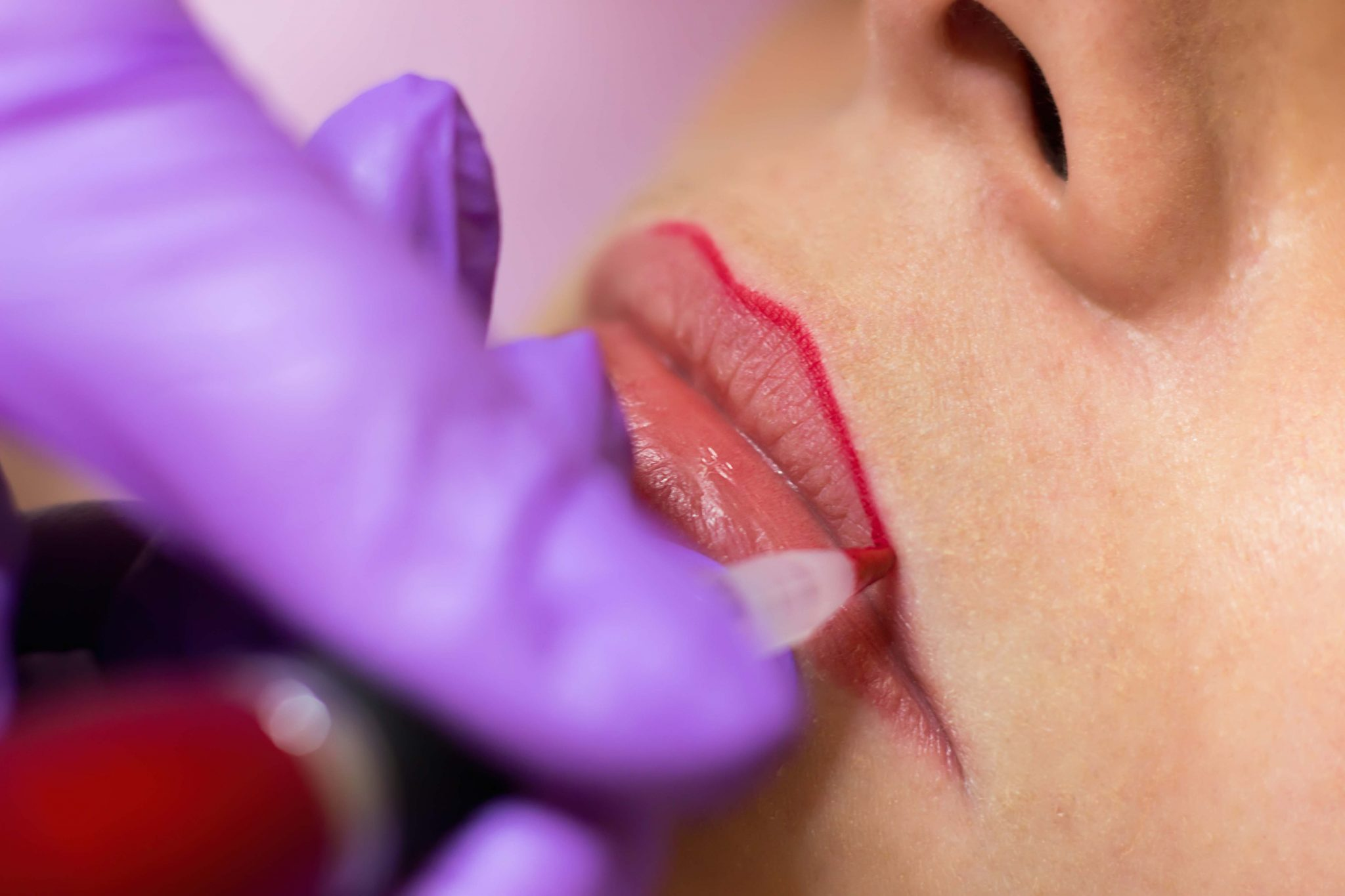 Advanced Lip Procedures Course